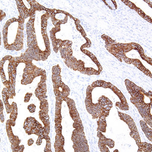 Cytokeratin-18-IHC018-Colon-10X