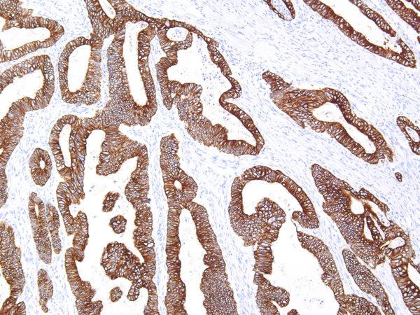 Cytokeratin-18-IHC018-Colon-10X
