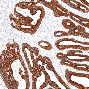 Cytokeratin-19-IHC019-Colon-10X