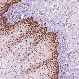 MLH1-IHC409-Esophagus