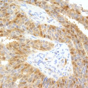 Thymidylate_Synthase-IHC697-Breast