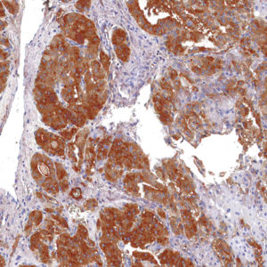 Thyroglobulin-IHC674-Thyroid-Cancer